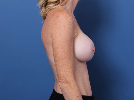 Newport Beach Plastic Surgery After