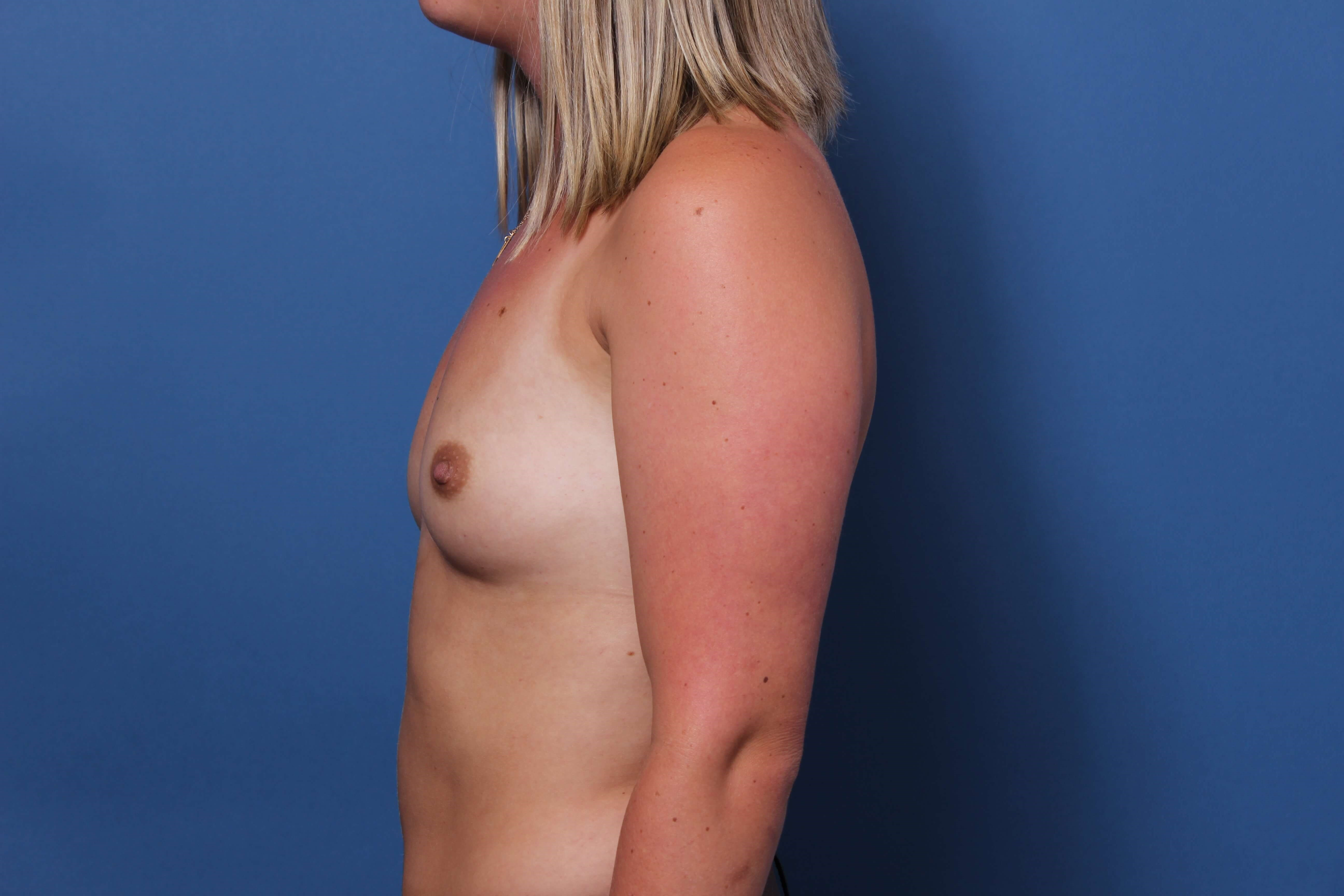 Inspira 485cc breast implants Before