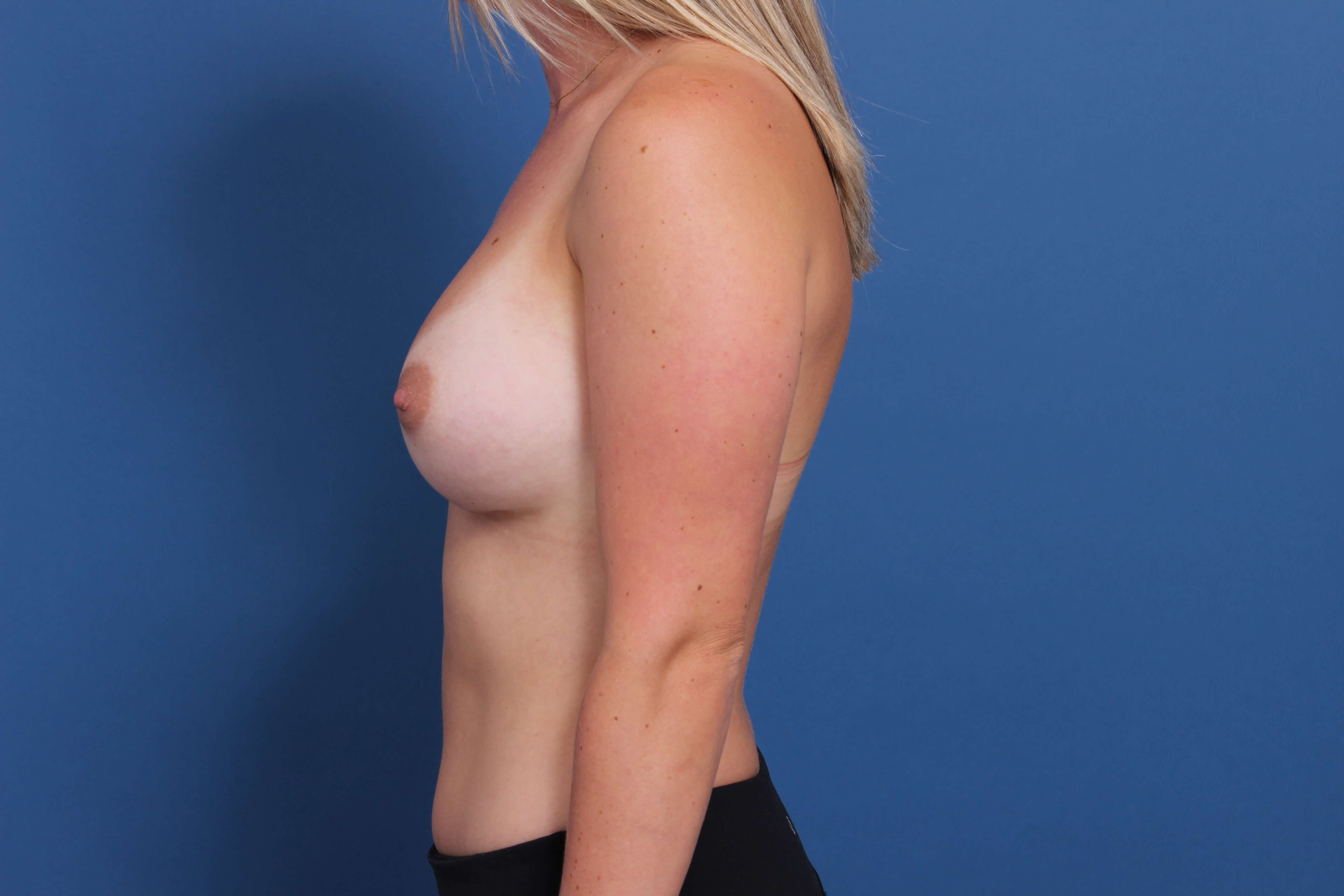 Inspira 485cc breast implants After