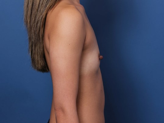 Newport Beach Breast Implants Before