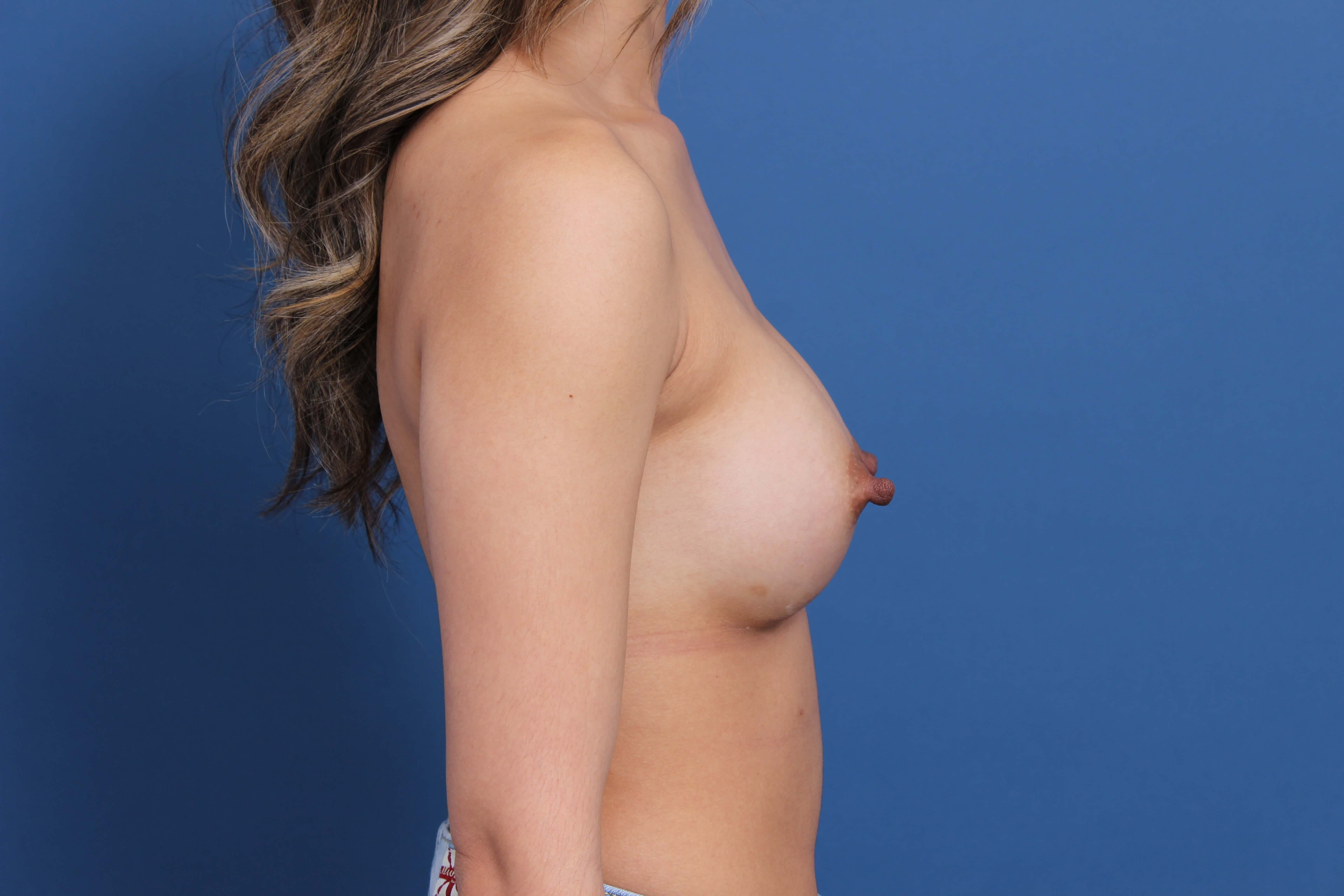 Newport Beach Breast Implants After
