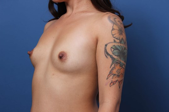 Breast Augmentation 445cc Before Breast  Implants