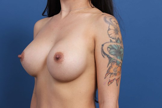 Breast Augmentation 445cc After Breast Implants