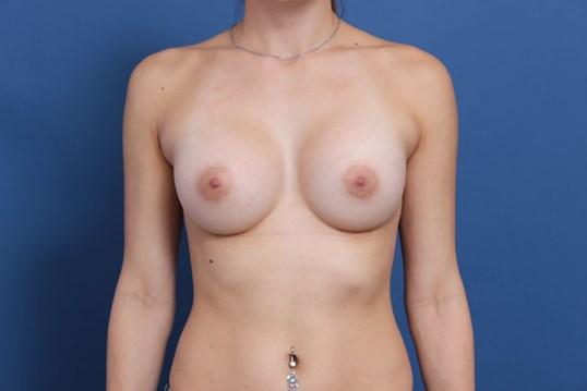 Silicone gel breast implants After