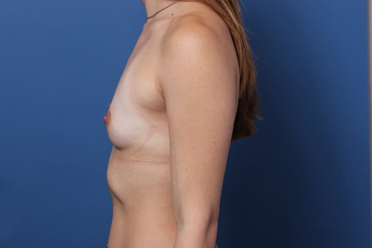 Sientra breast implants Before