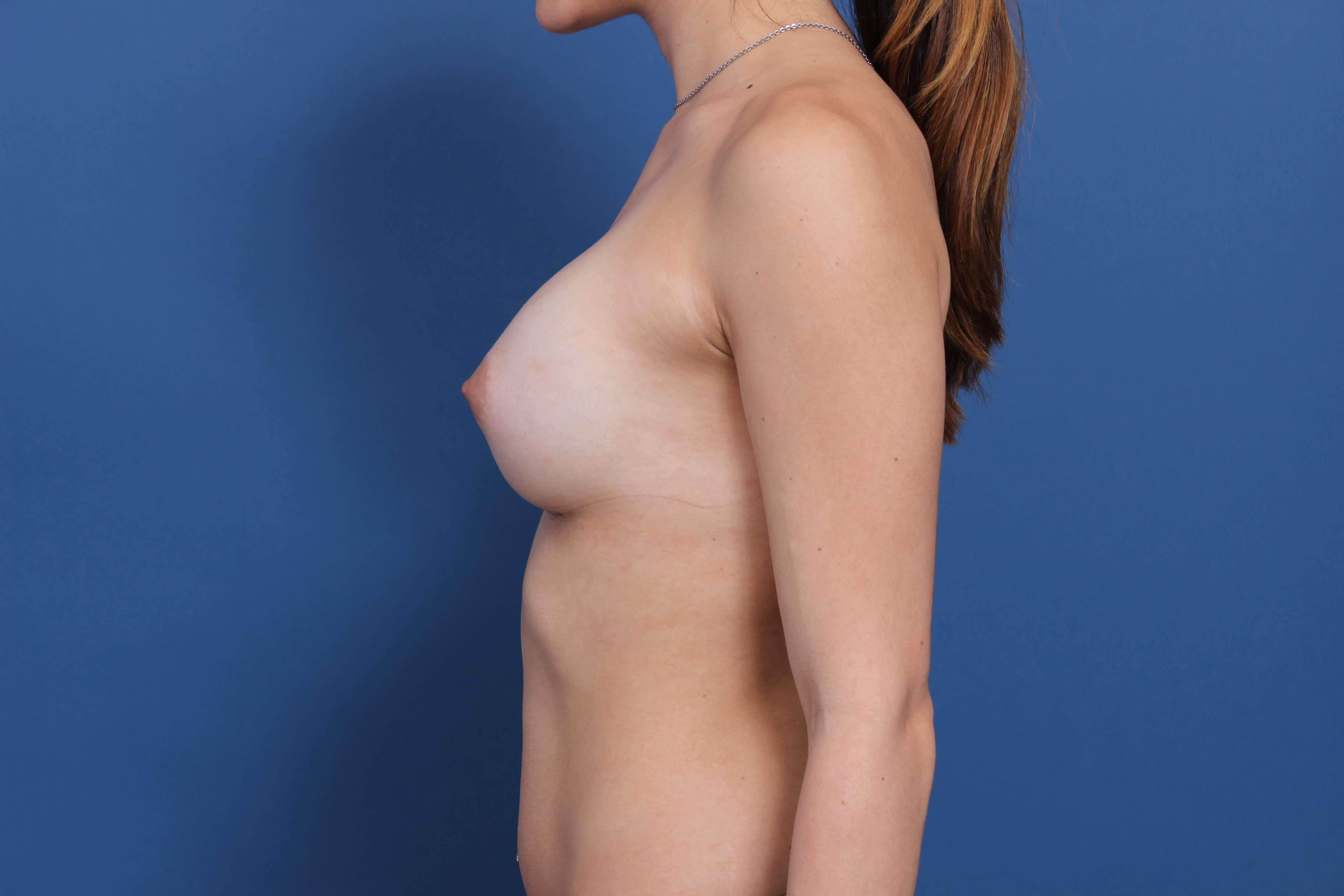 Sientra breast implants After
