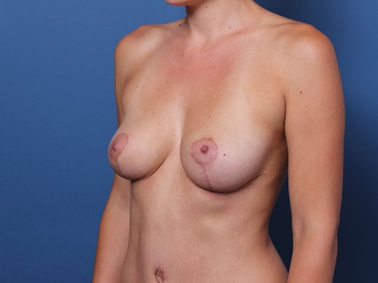 Mastopexy and Abdominoplasty After