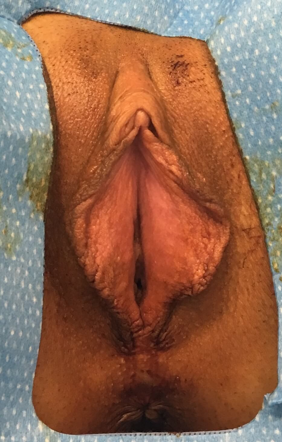 Orange County Labiaplasty Before