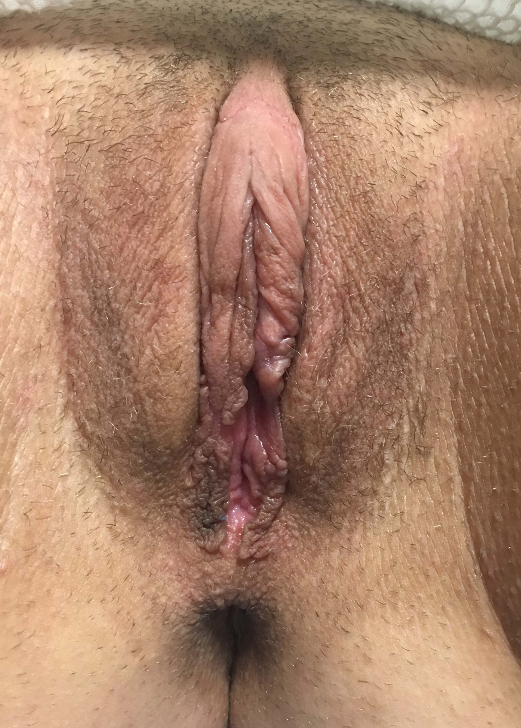 Orange County Labiaplasty After