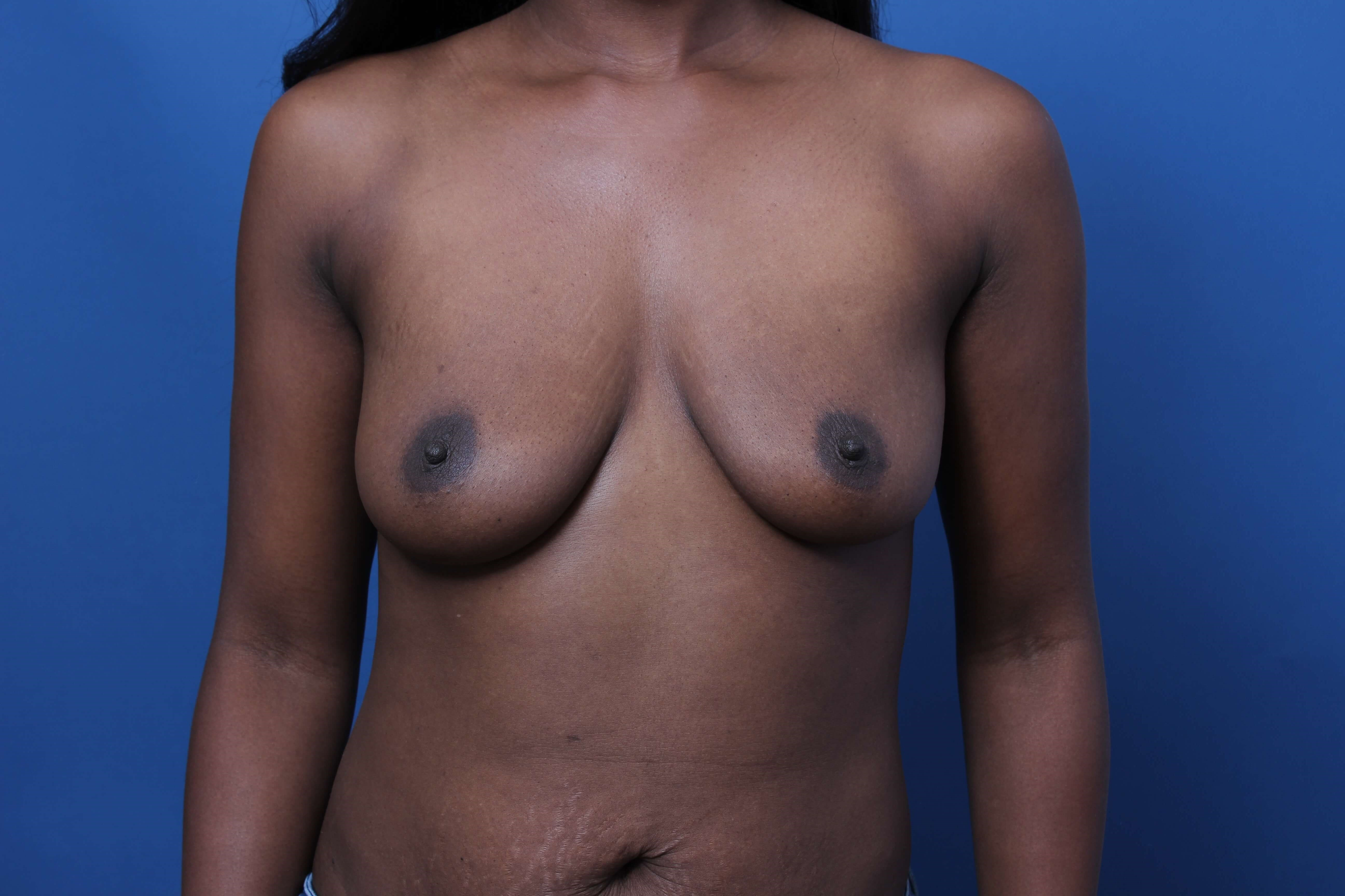 Dual Plane Breast Augmentation Before