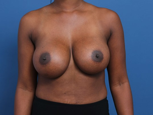 Dual Plane Breast Augmentation After