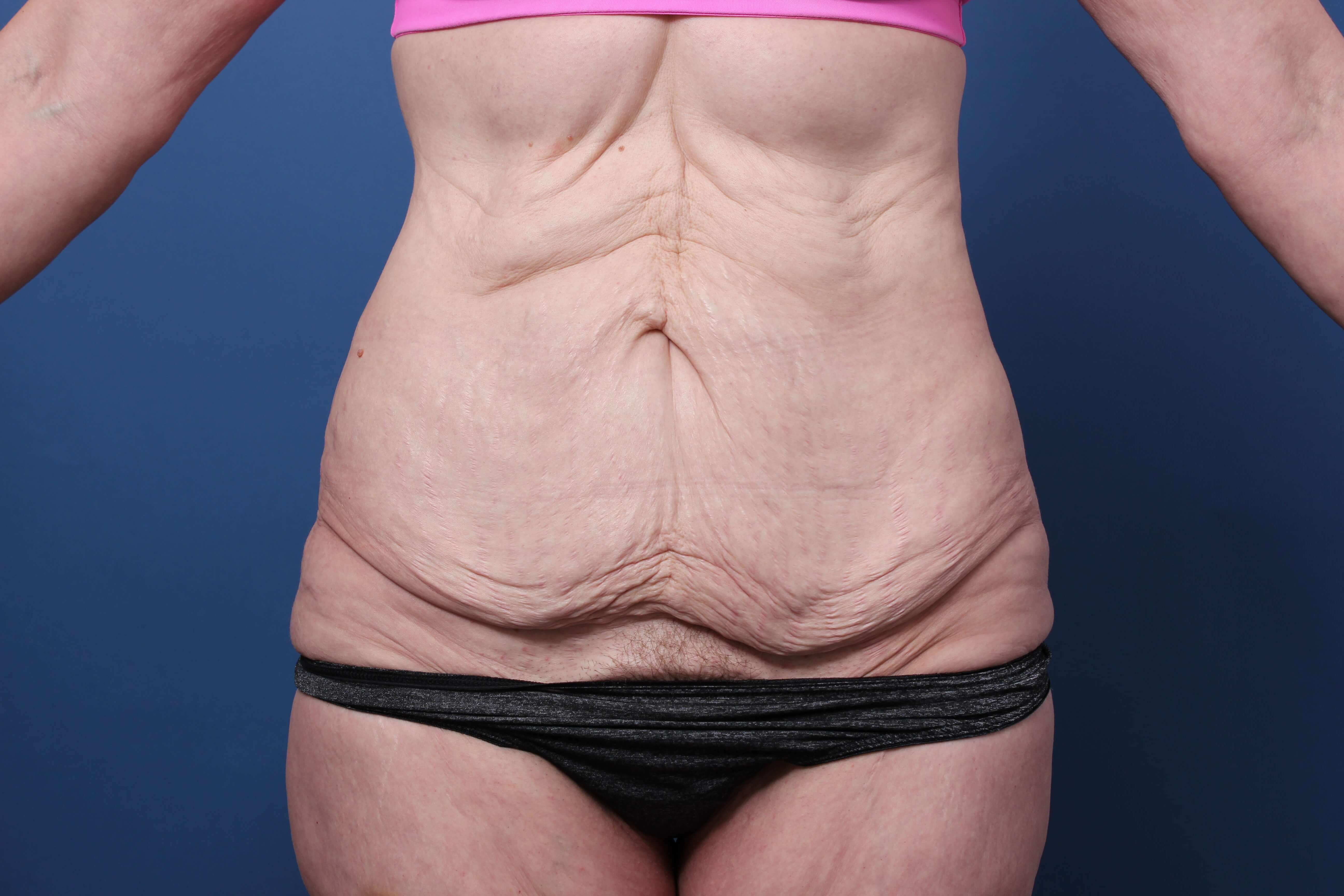 Newport  Beach Abdominoplasty Before