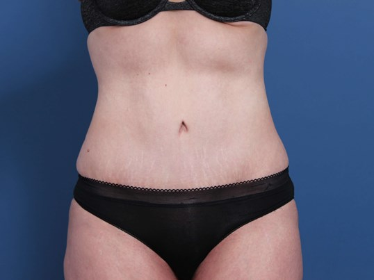 Newport  Beach Abdominoplasty After