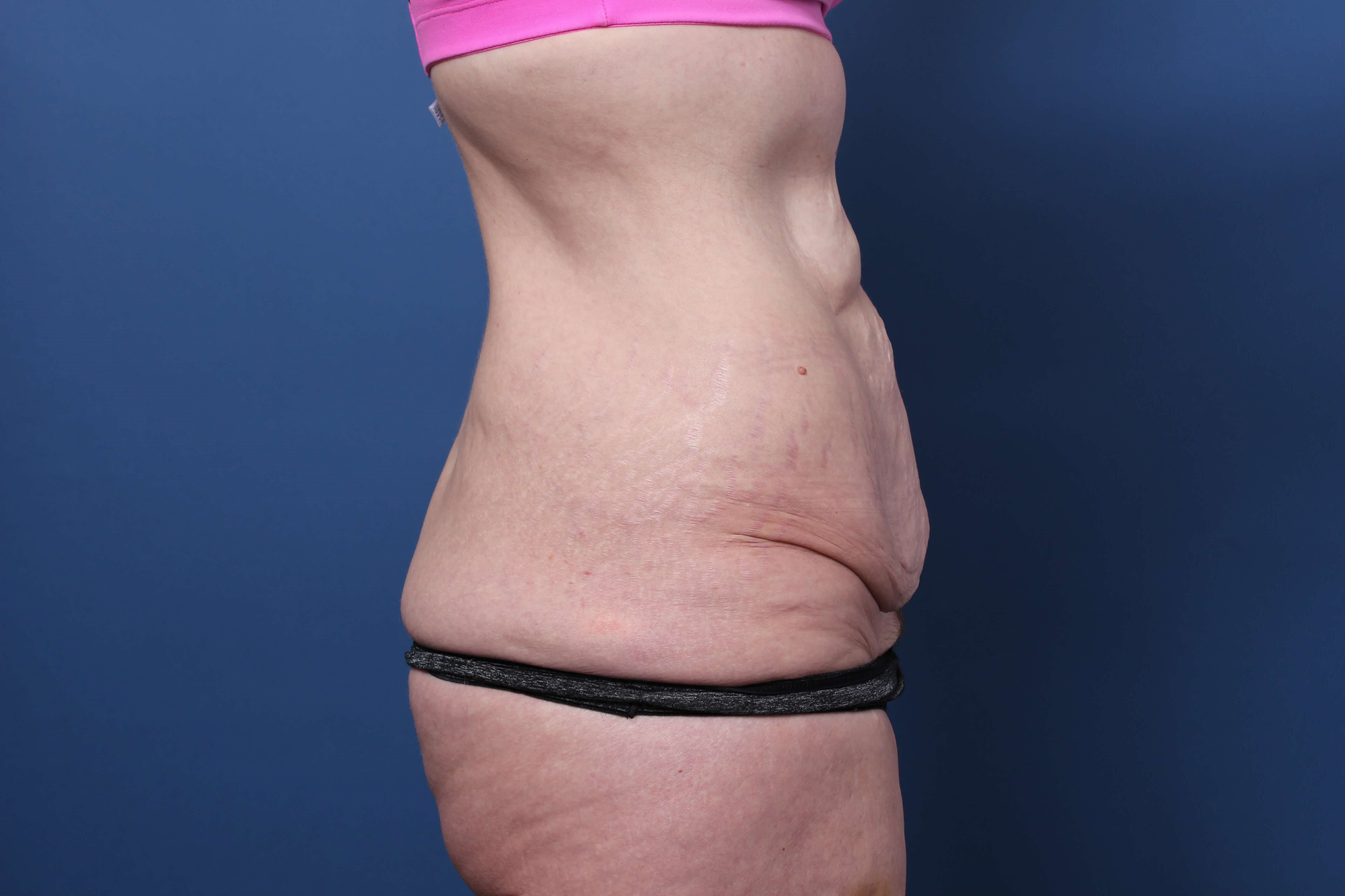 Tummy Tuck Orange County Before