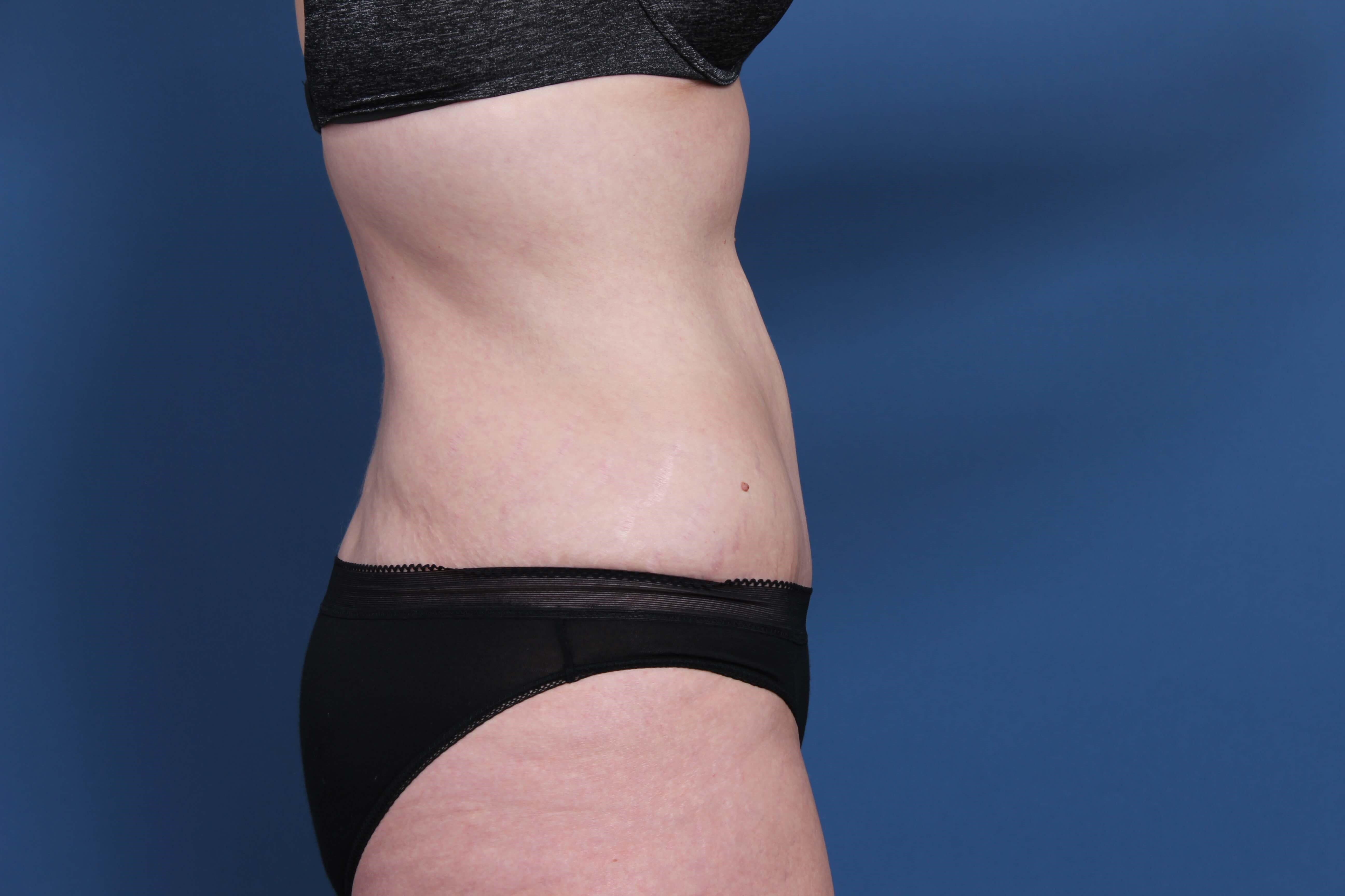 Tummy Tuck Orange County After