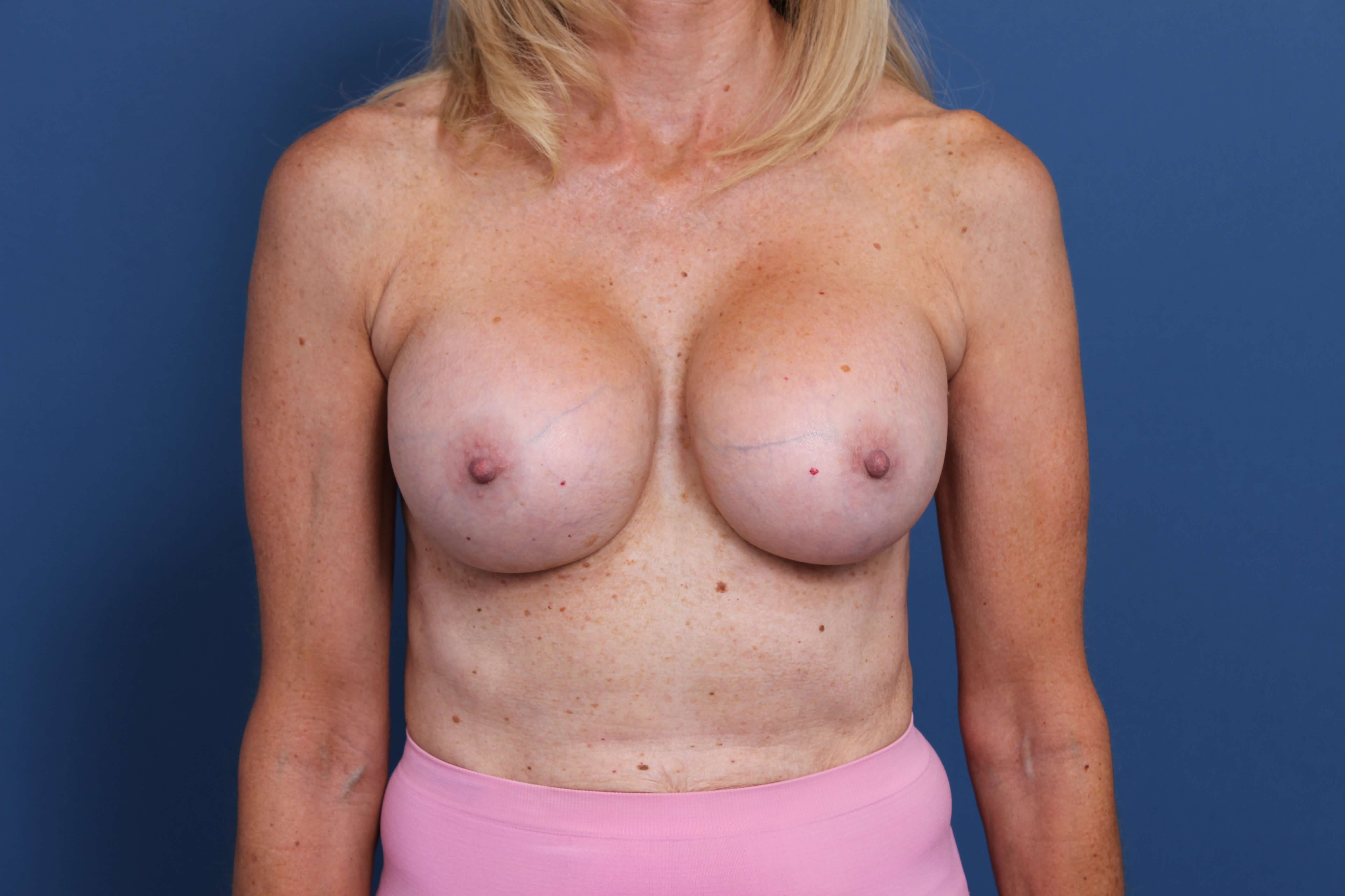 Asymmetric Breast Augmentation After