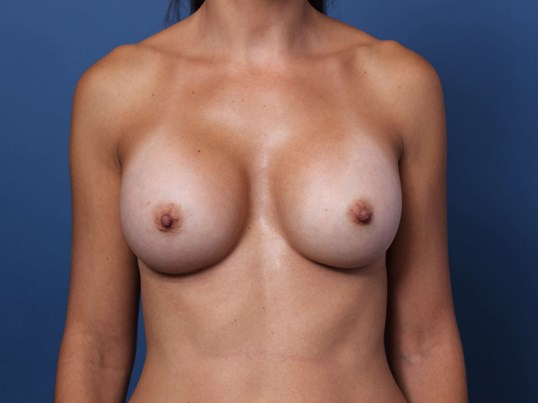 Correction of Breast Asymmetry After