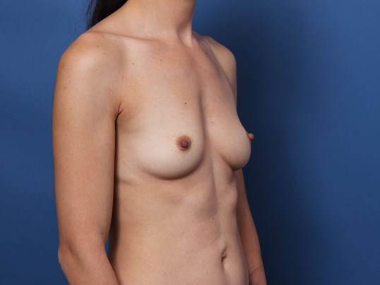 Breast Volume Restoration Before