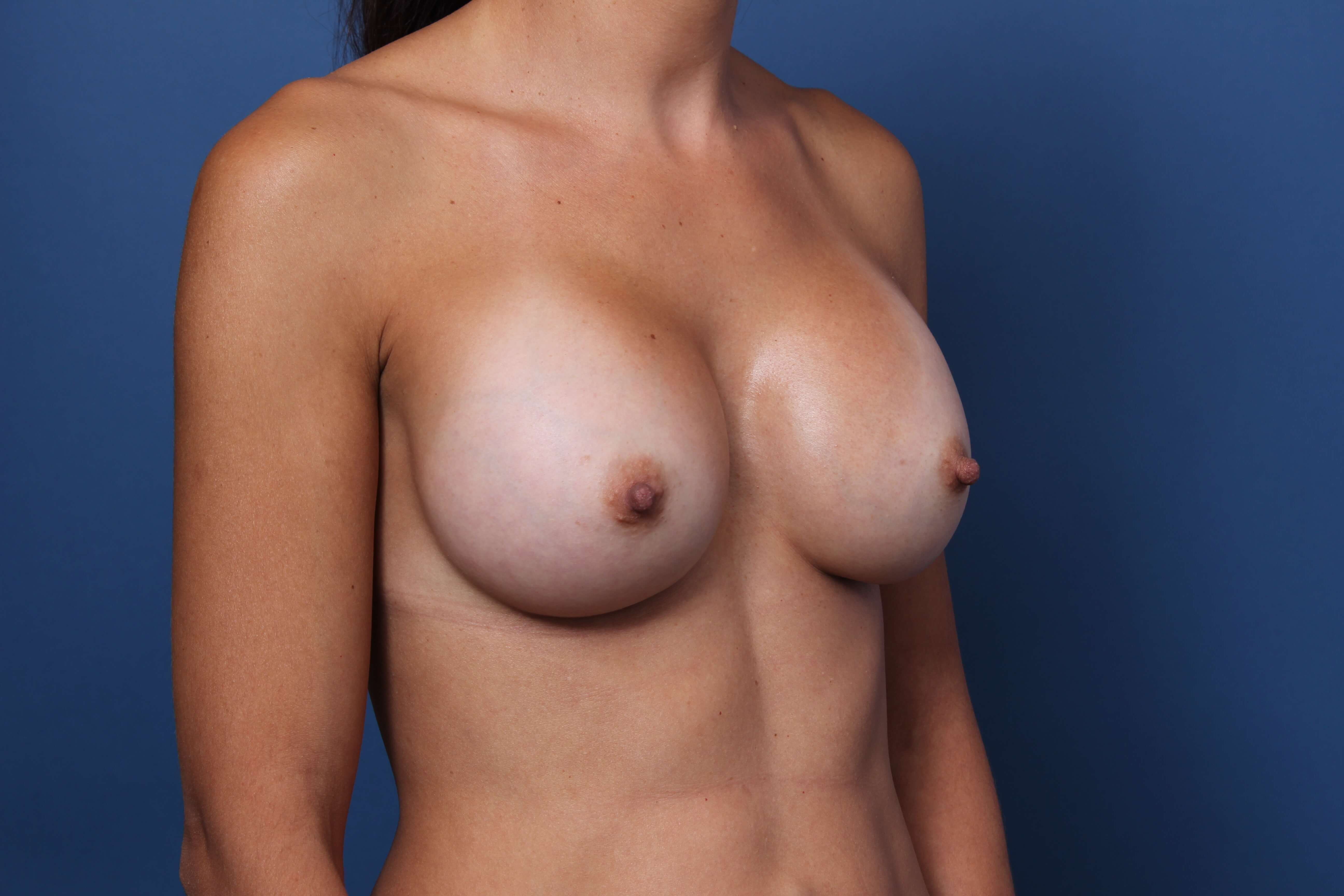 Breast Volume Restoration After