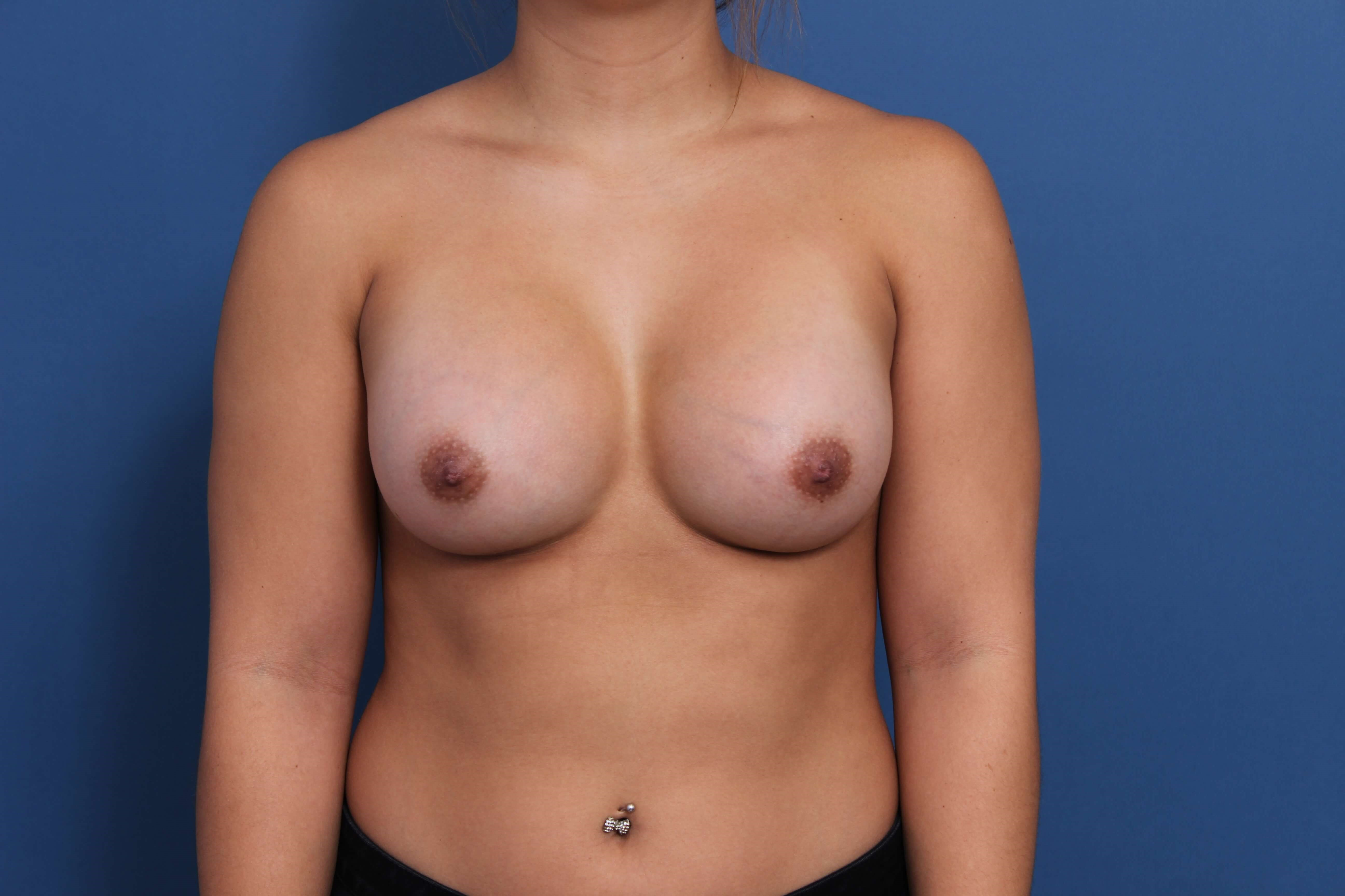 Breast Asymmetry Correction After