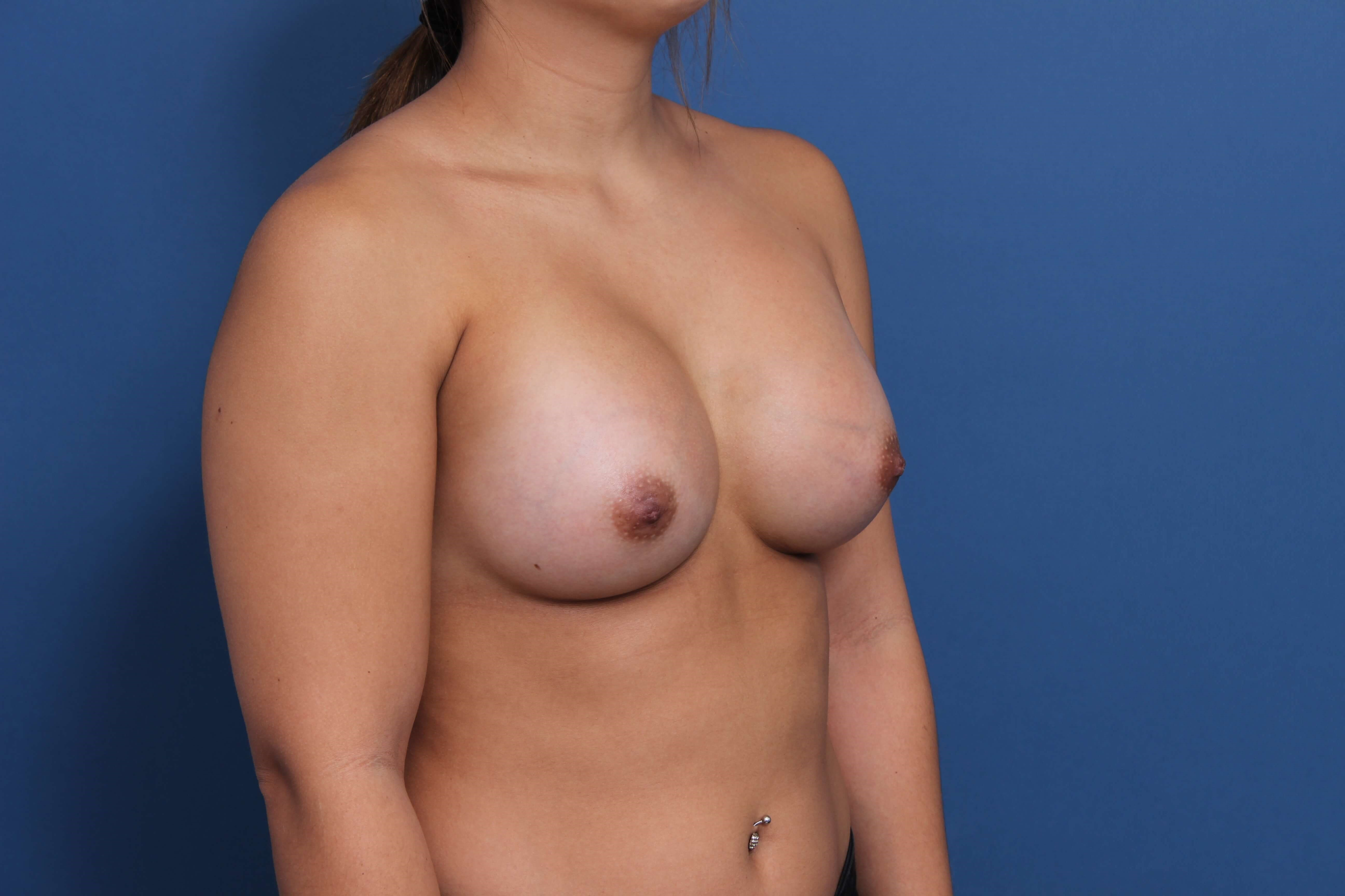 Breast Implants Orange County After
