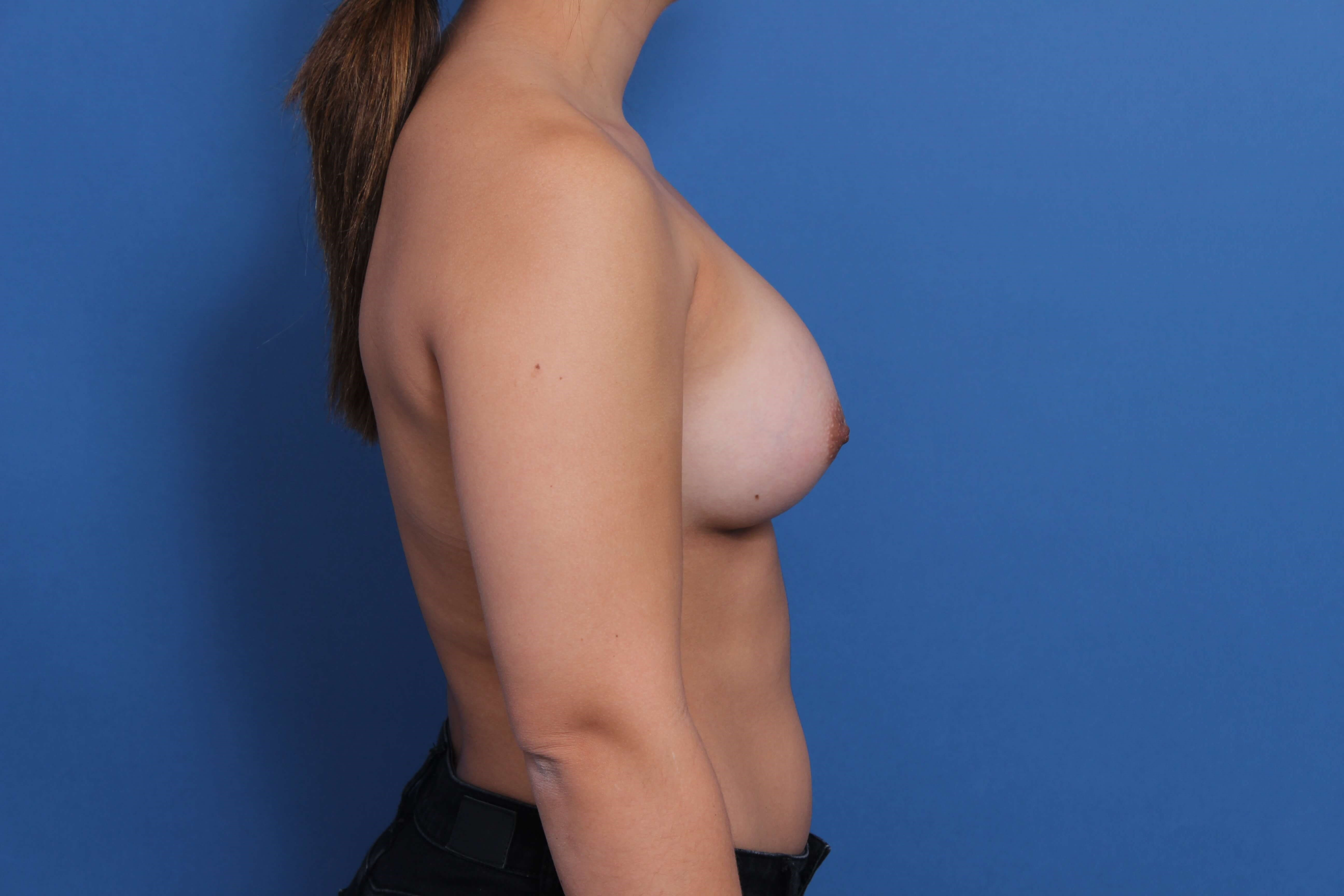High Profile Silicone Implants After