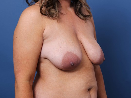 Mastopexy-Augmentation Before