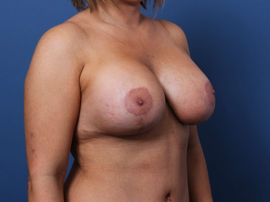 Mastopexy-Augmentation After