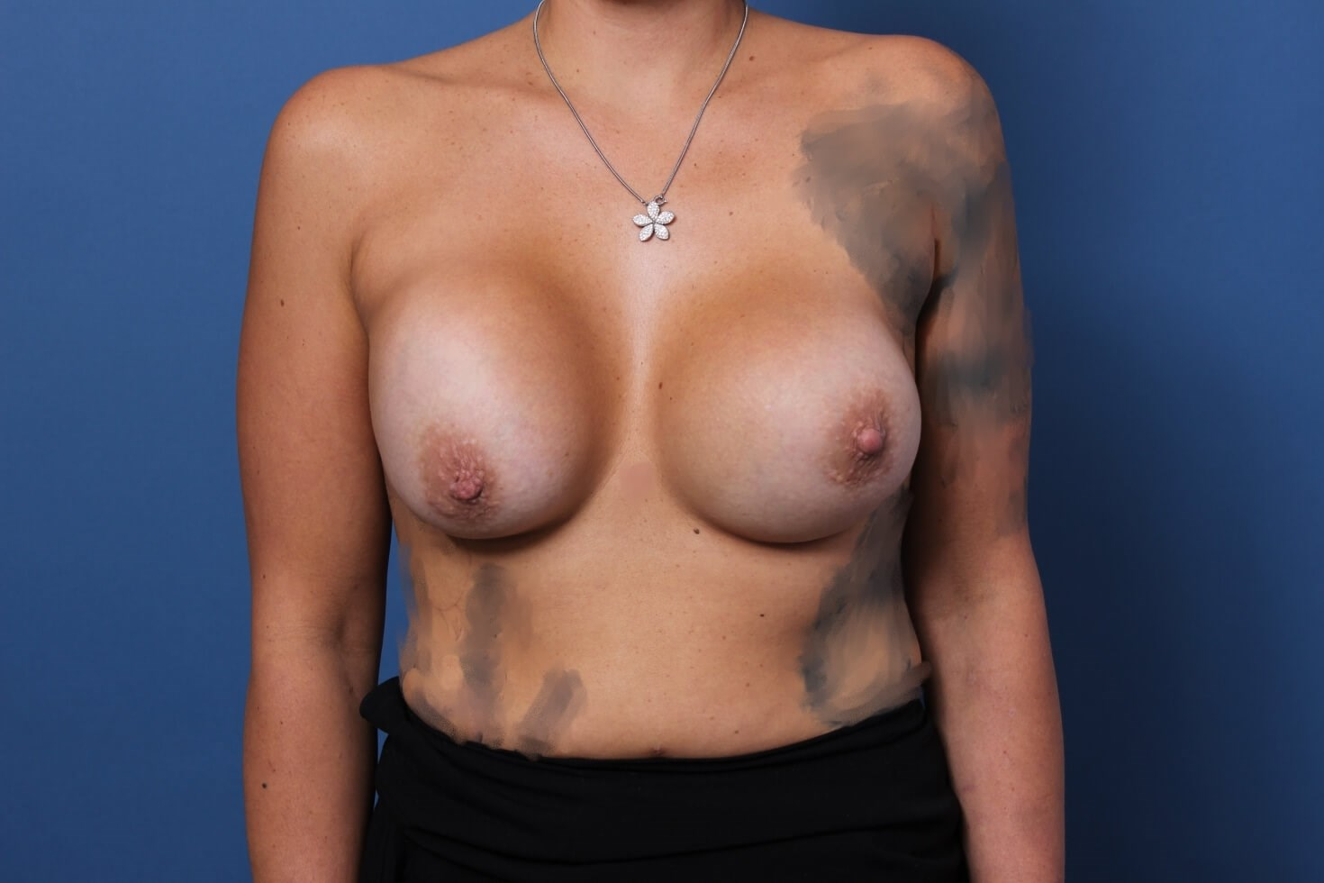 Newport Beach Breast Revision Before