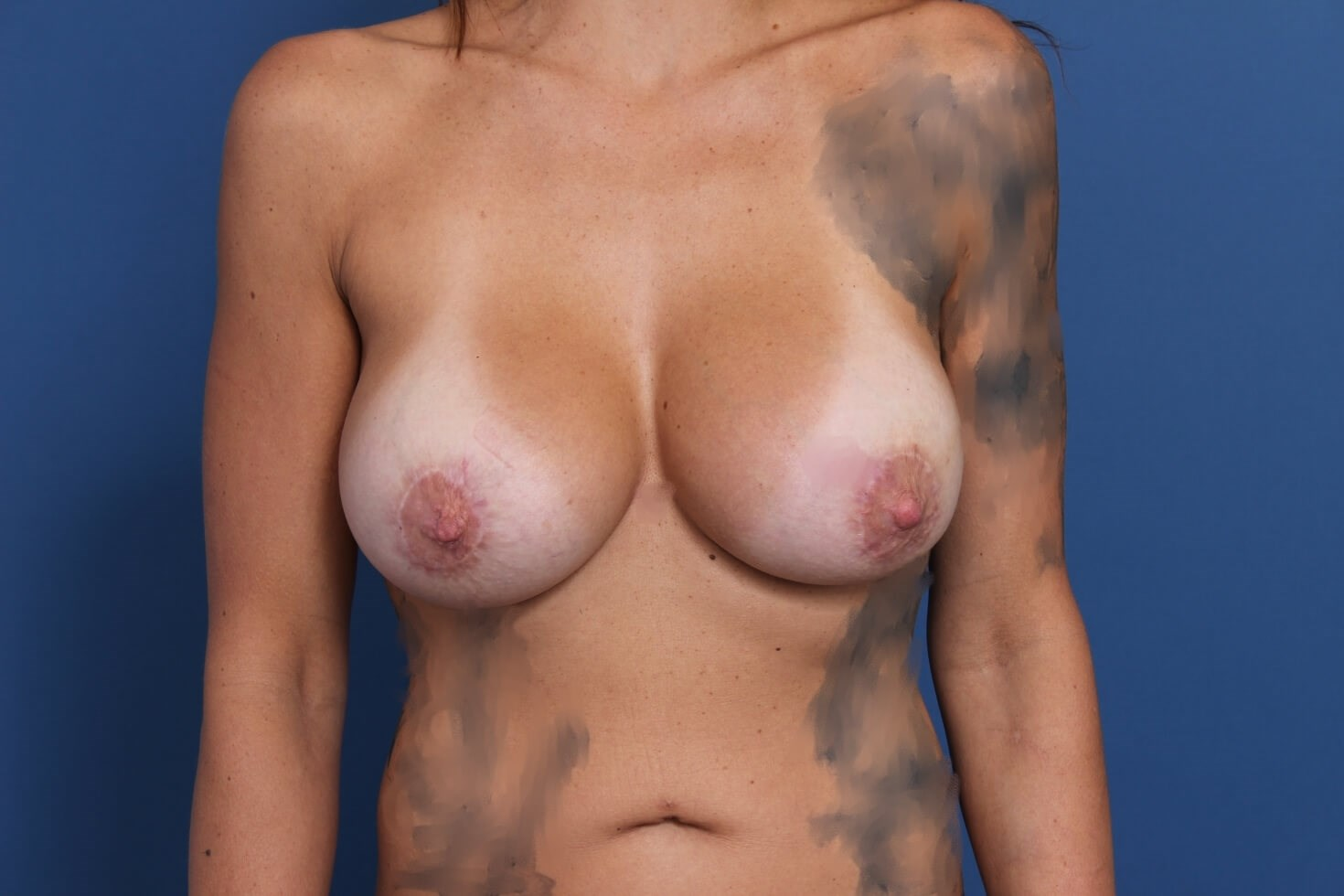 Newport Beach Breast Revision After