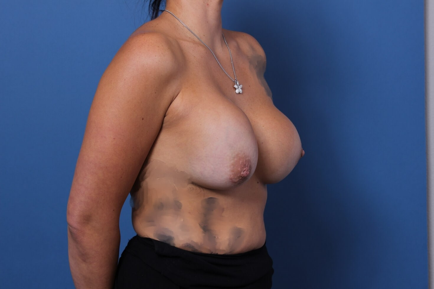 Capsular Contracture Surgery Before