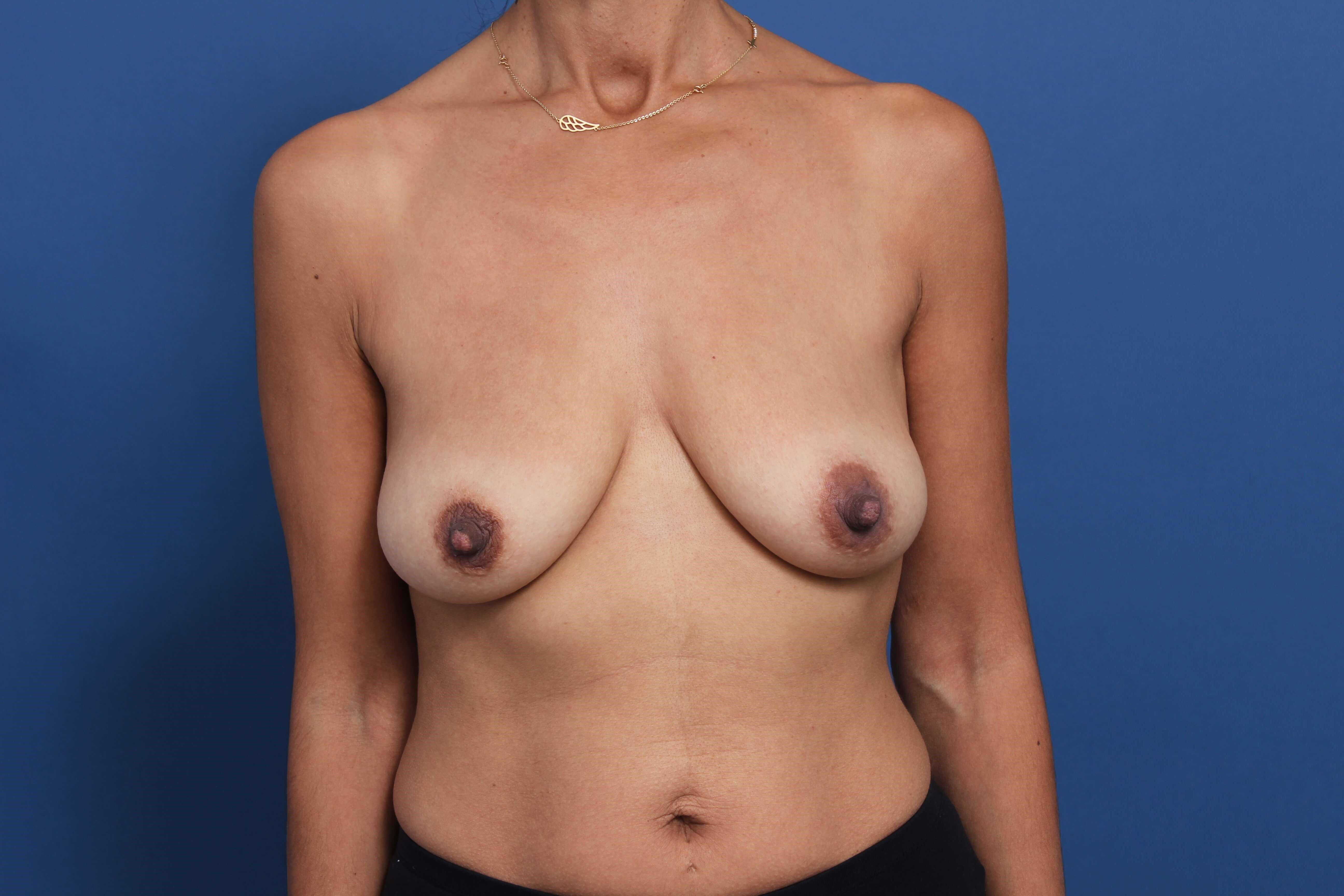 Post-Pregnancy Breast Implants Before