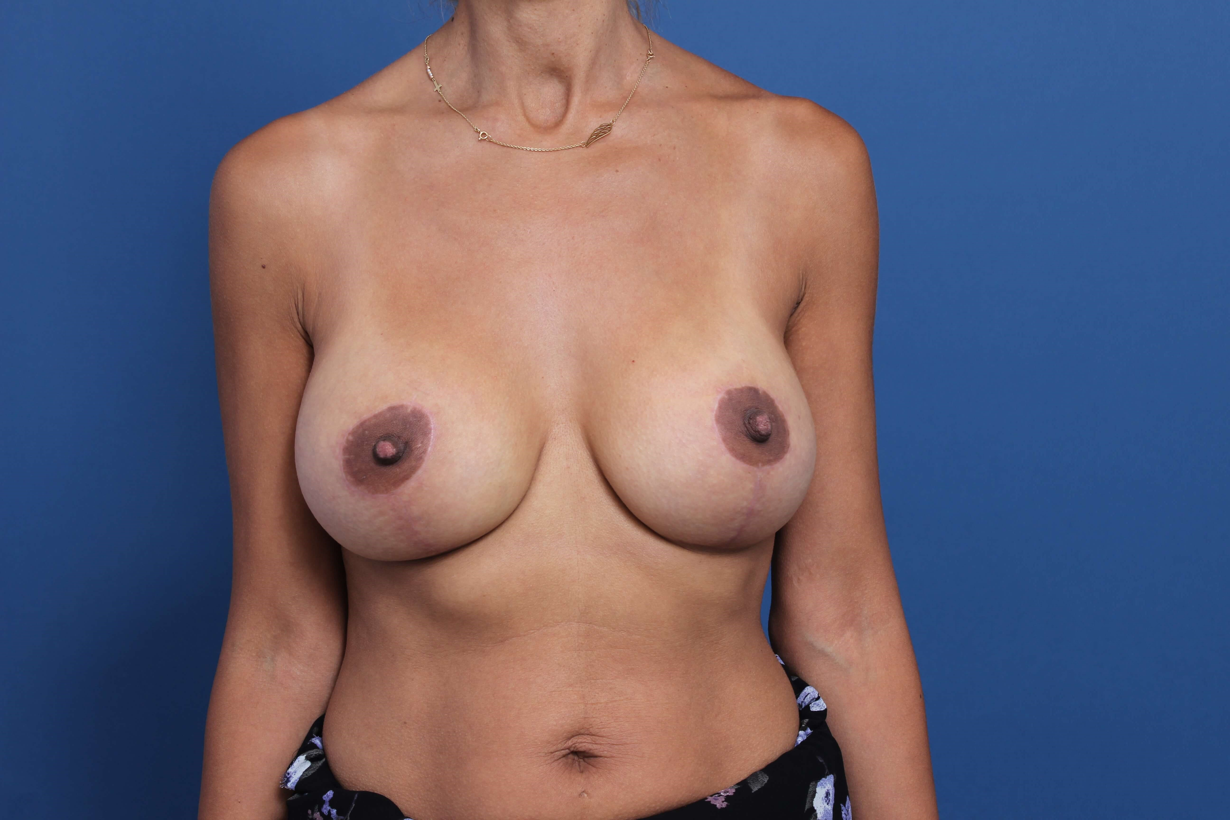 Post-Pregnancy Breast Implants After