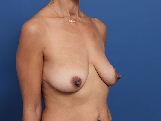 Mastopexy Newport Beach Before