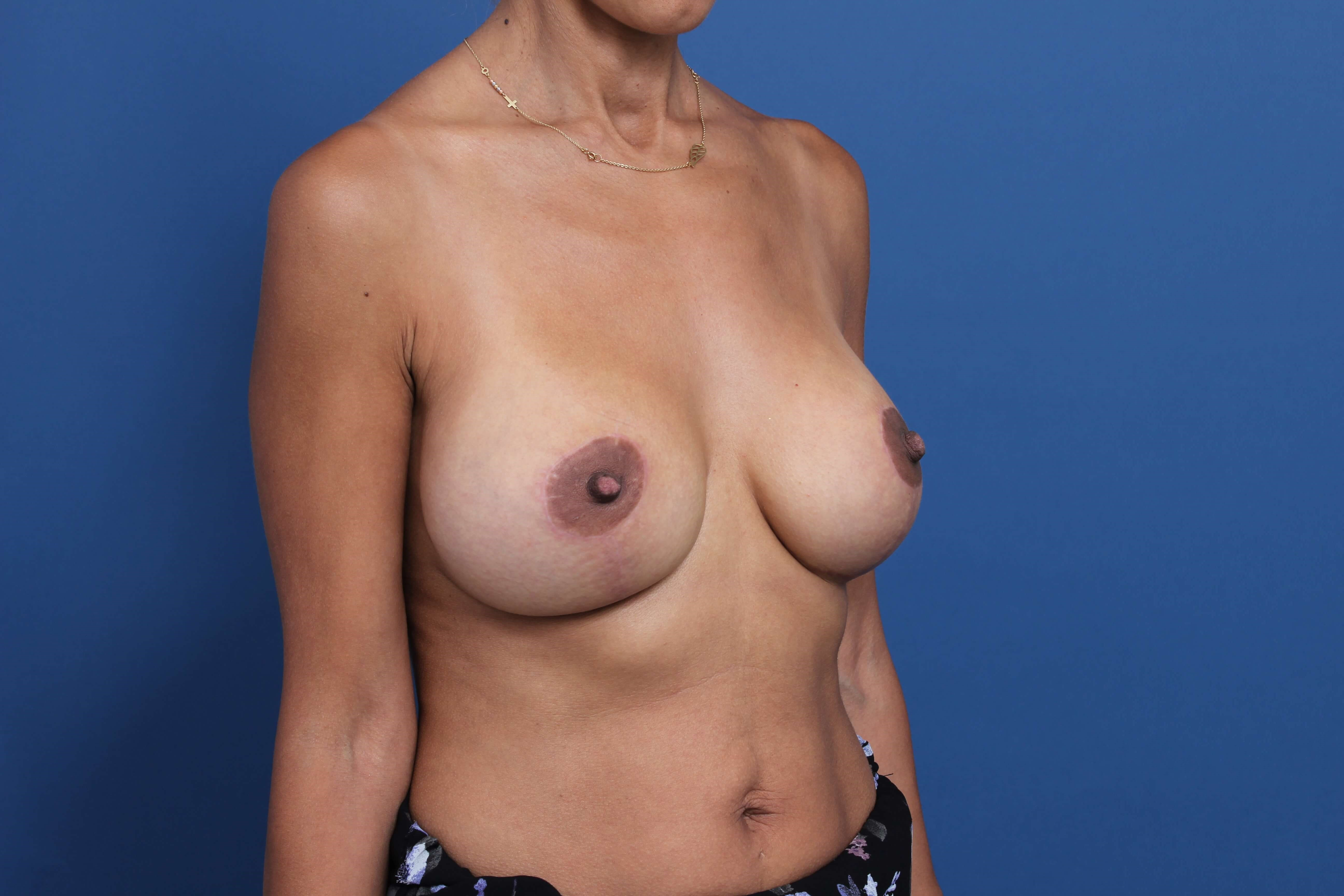 Mastopexy Newport Beach After