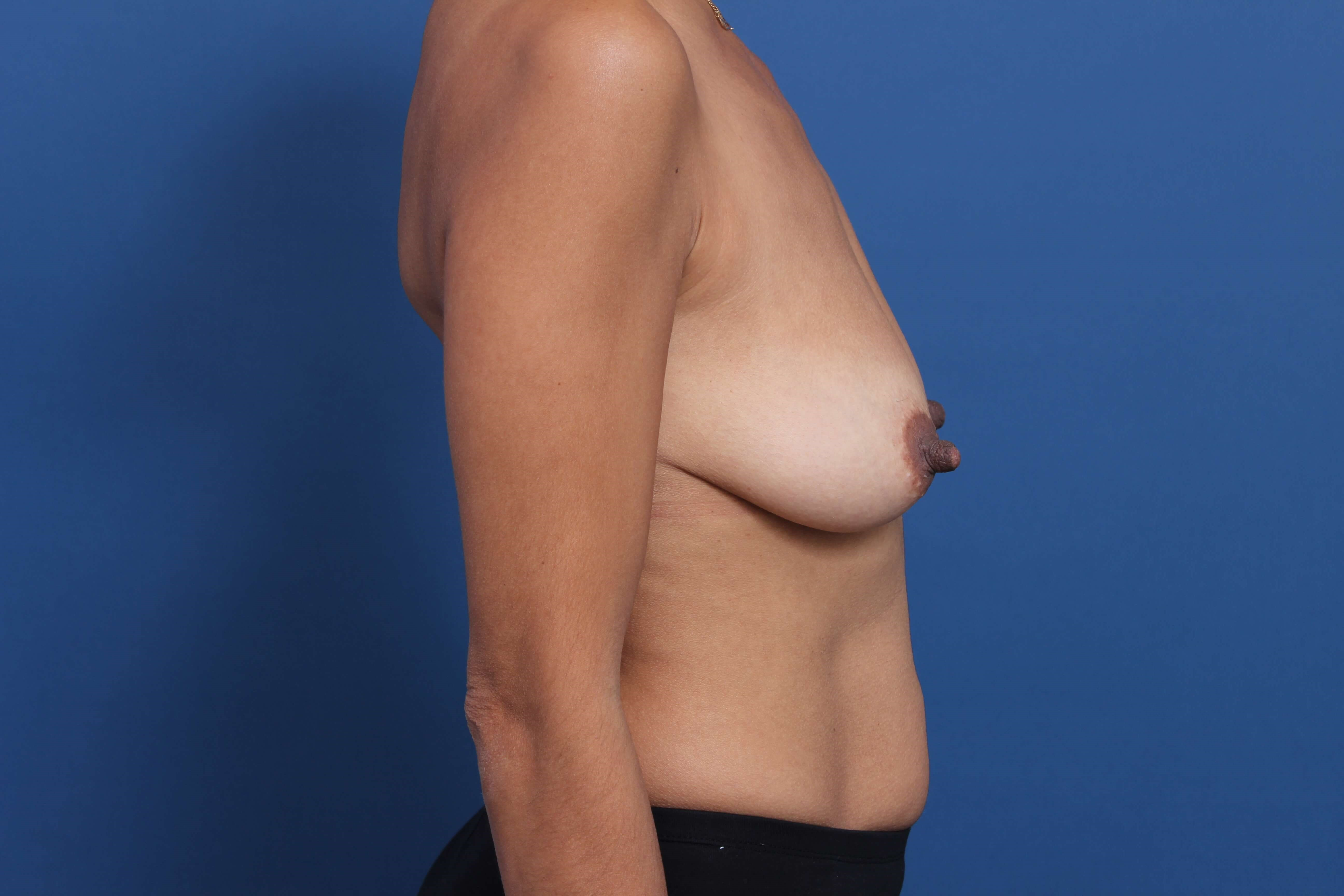 Inspira Breast Implants Before