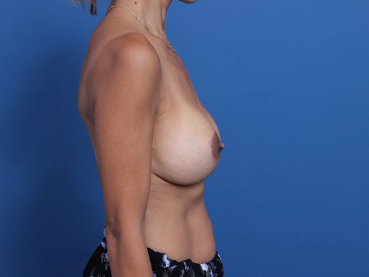 Inspira Breast Implants After