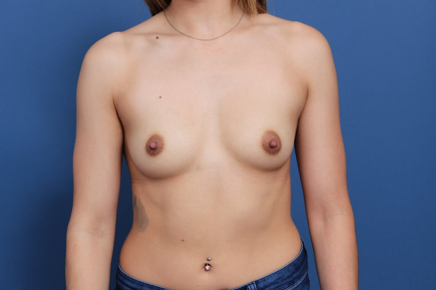 High Profile Breast Implants Before