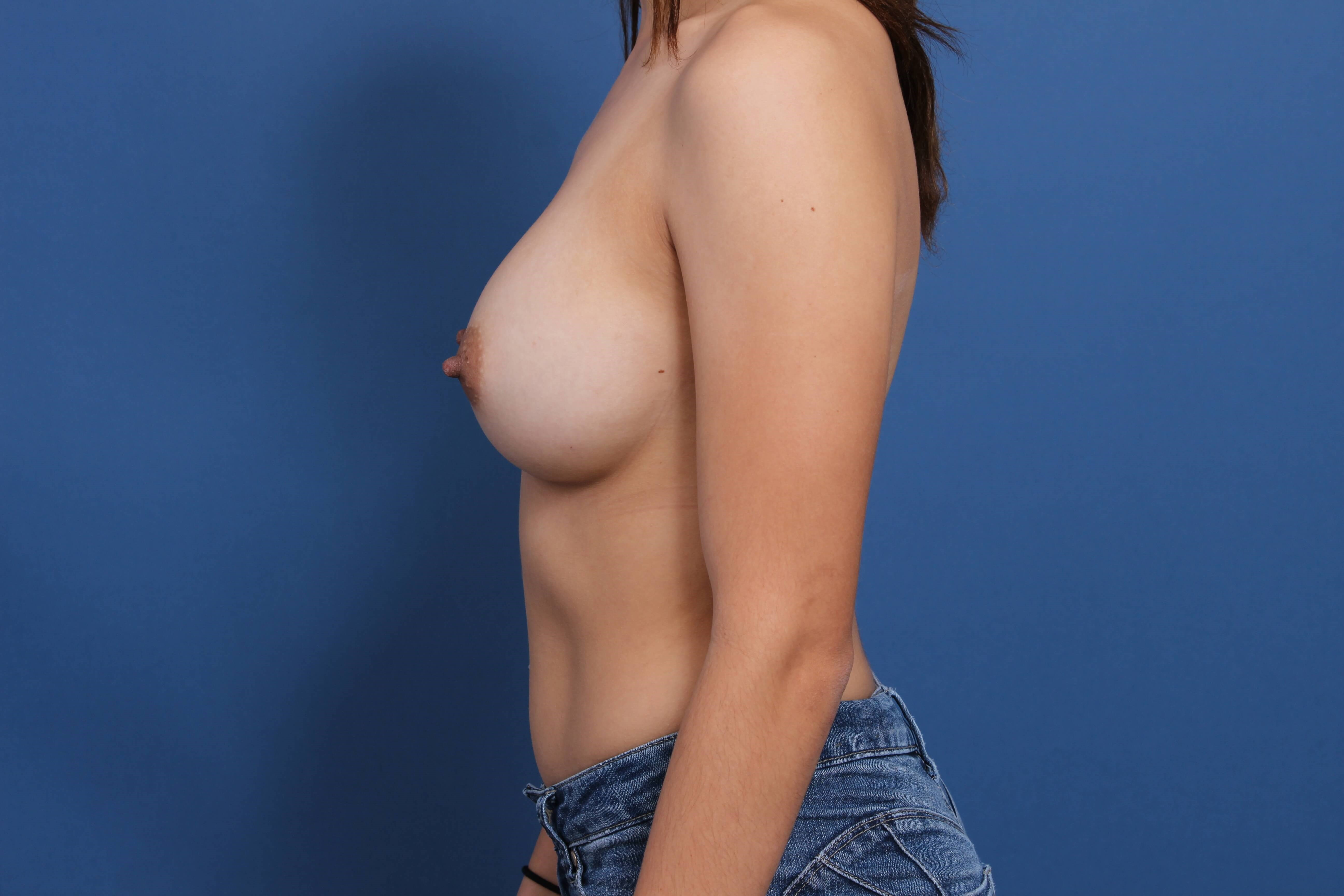 Breast Implants Newport Beach After