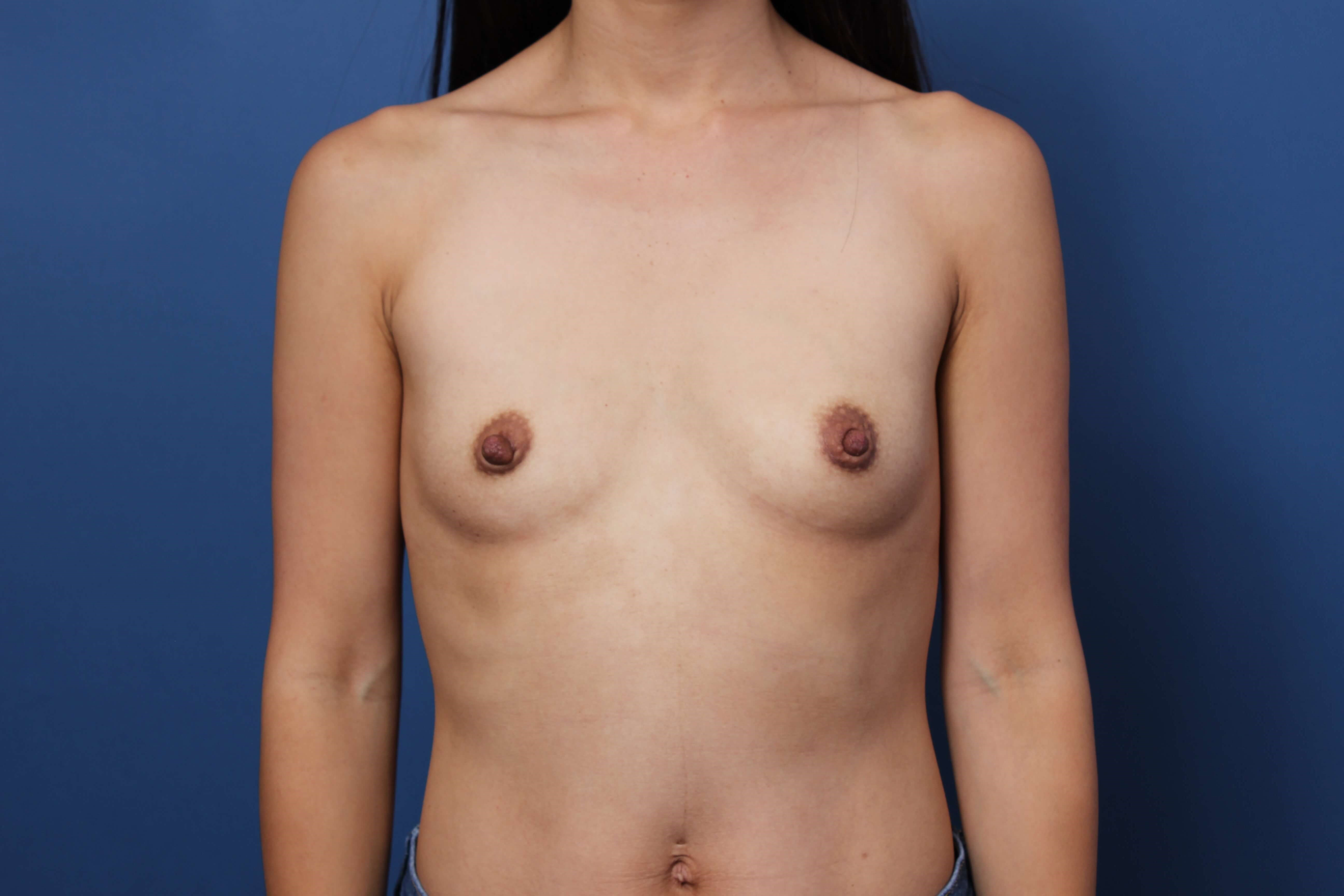 Asian Breast Augmentation Before