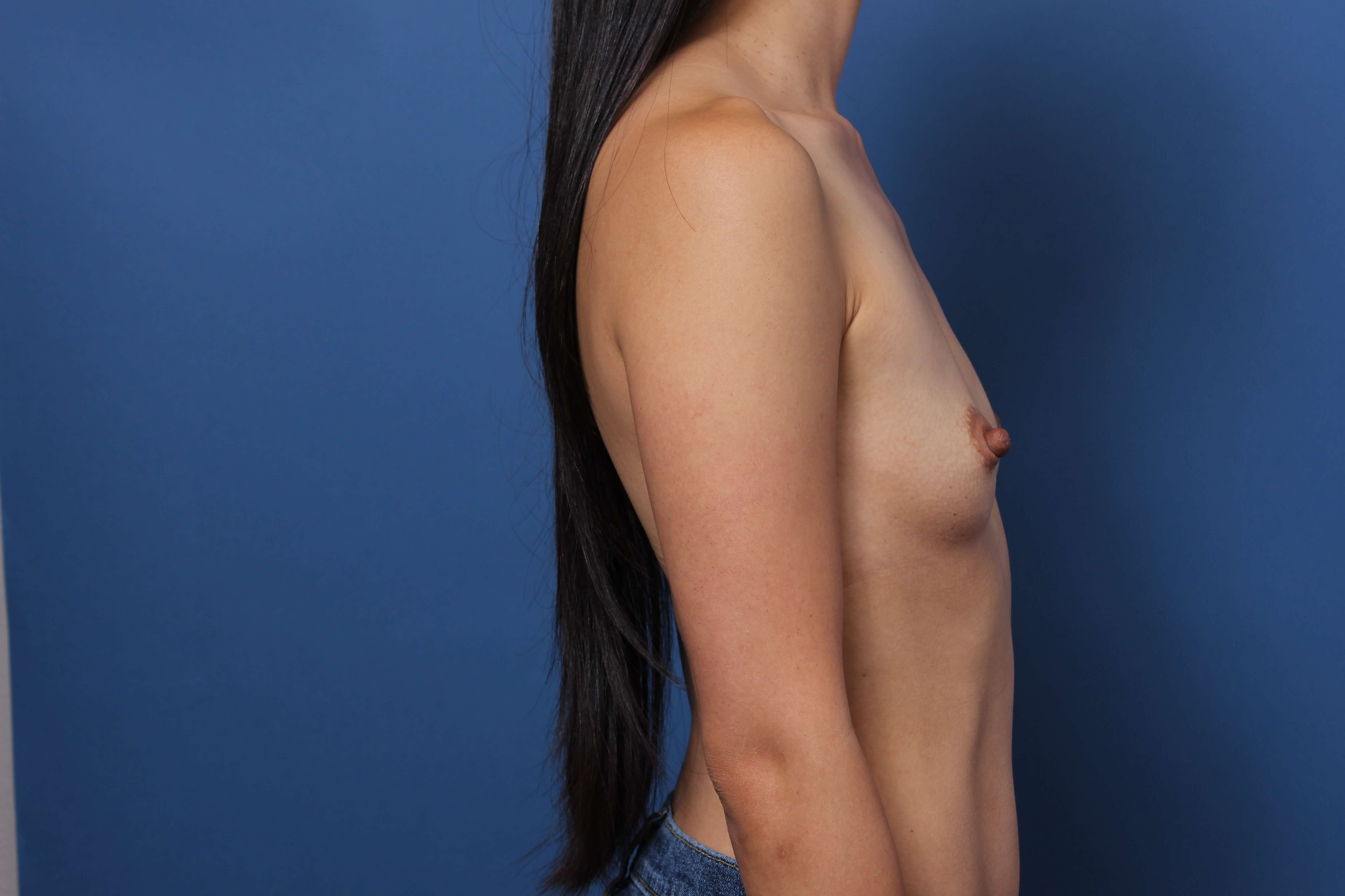 Orange County Breast Implants Before