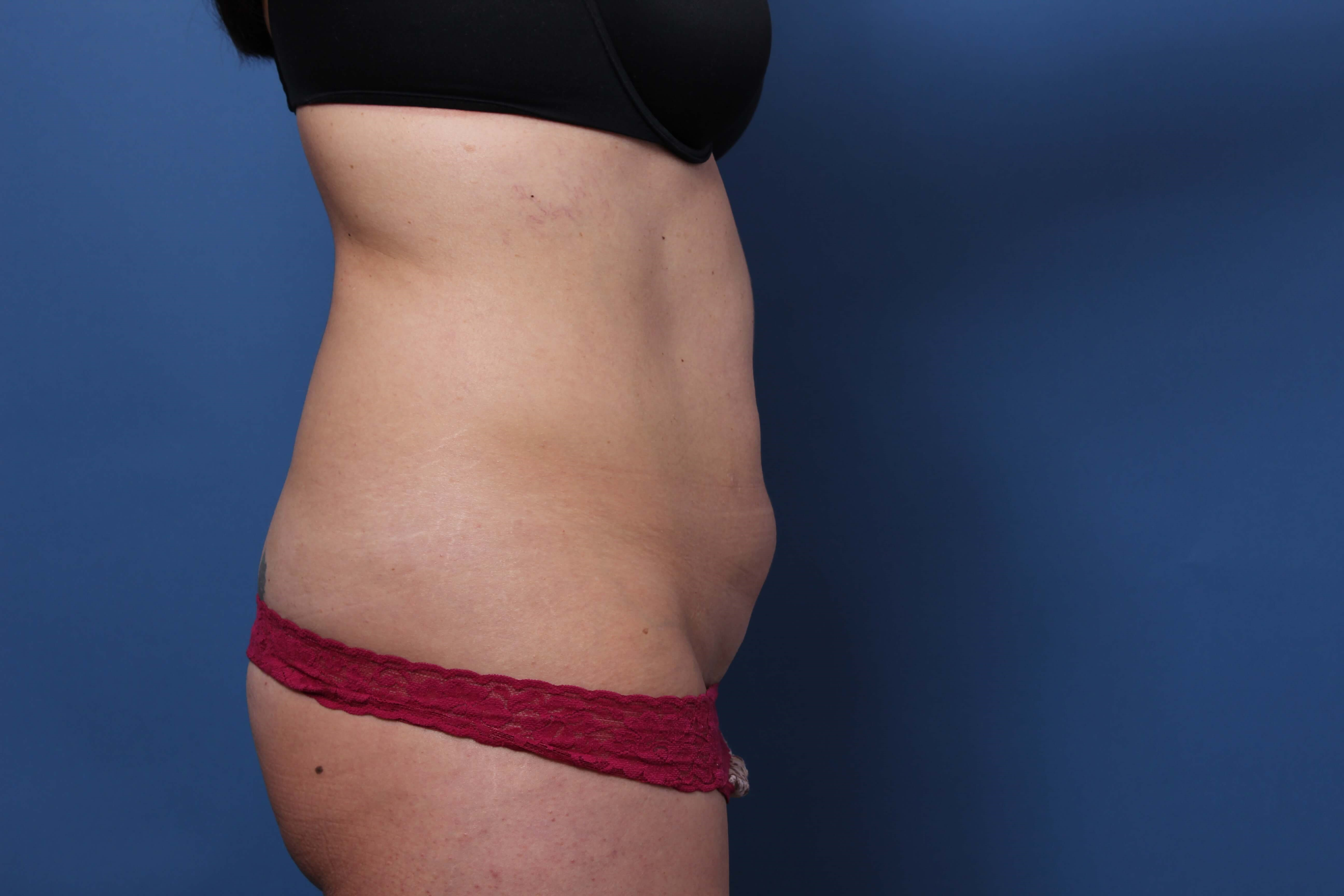 Newport Beach Tummy Tuck Before