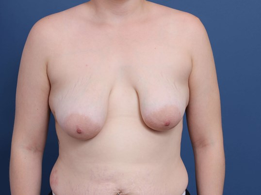 Mastopexy-Aug Newport Beach Before