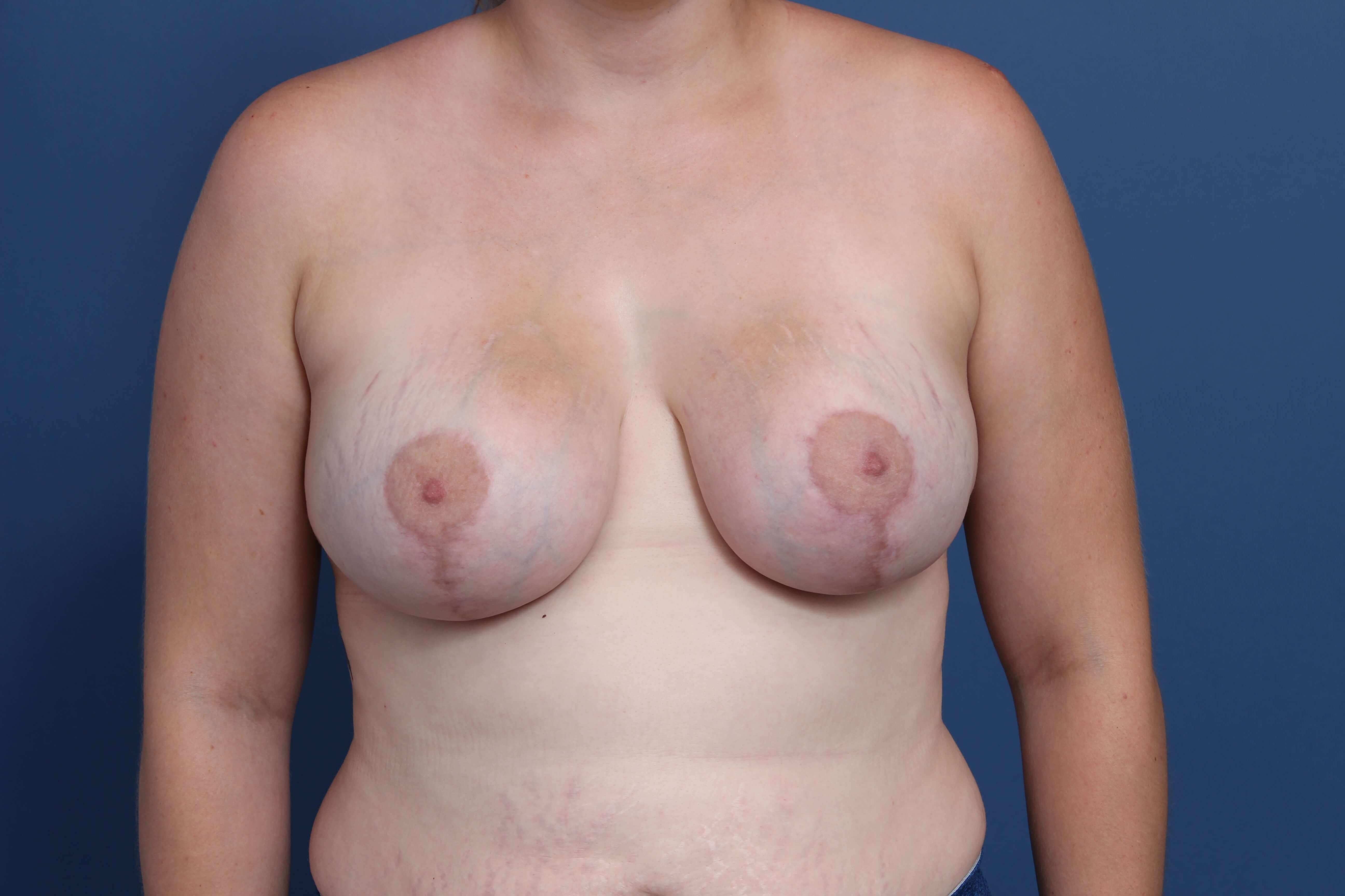 Mastopexy-Aug Newport Beach After