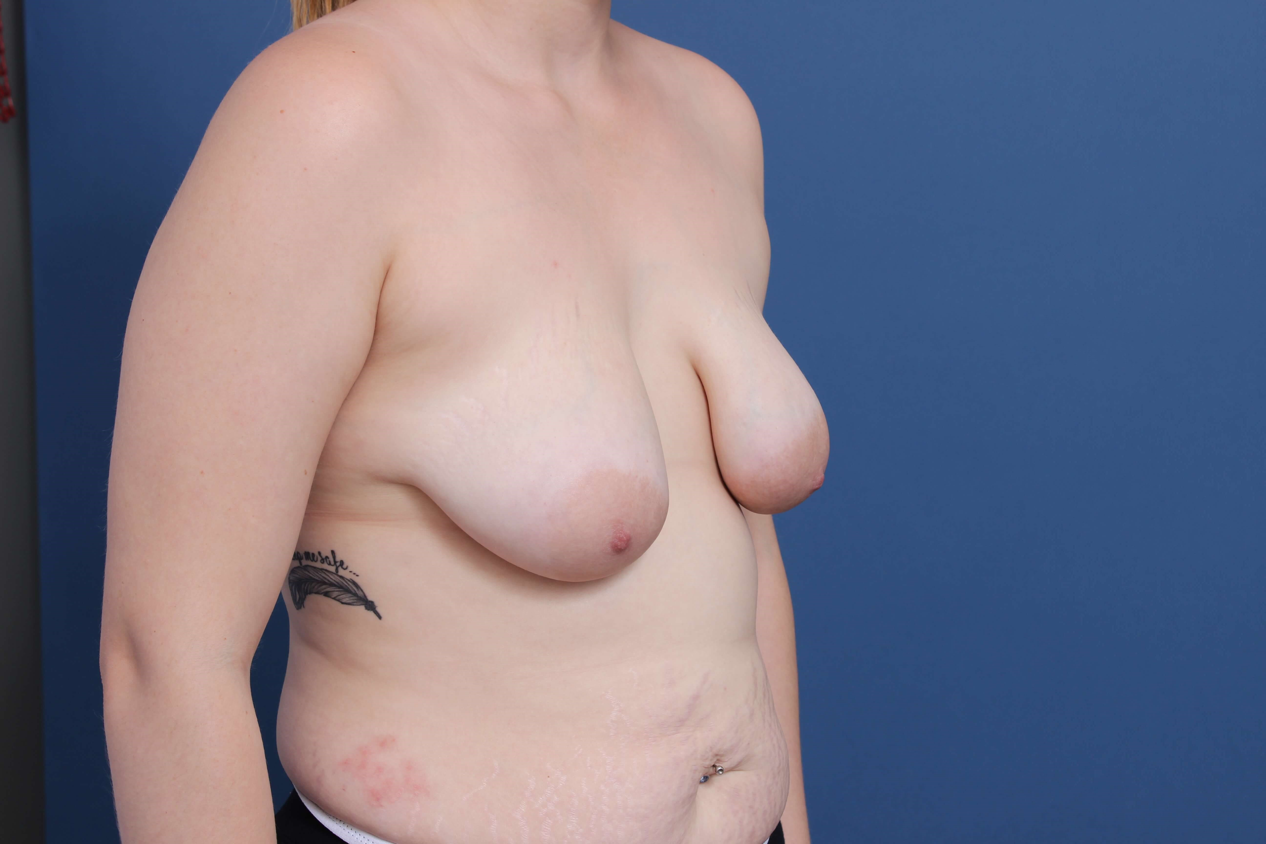 Correction of Breast Asymmetry Before
