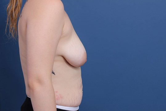 Moderate Plus Profile Implants Before