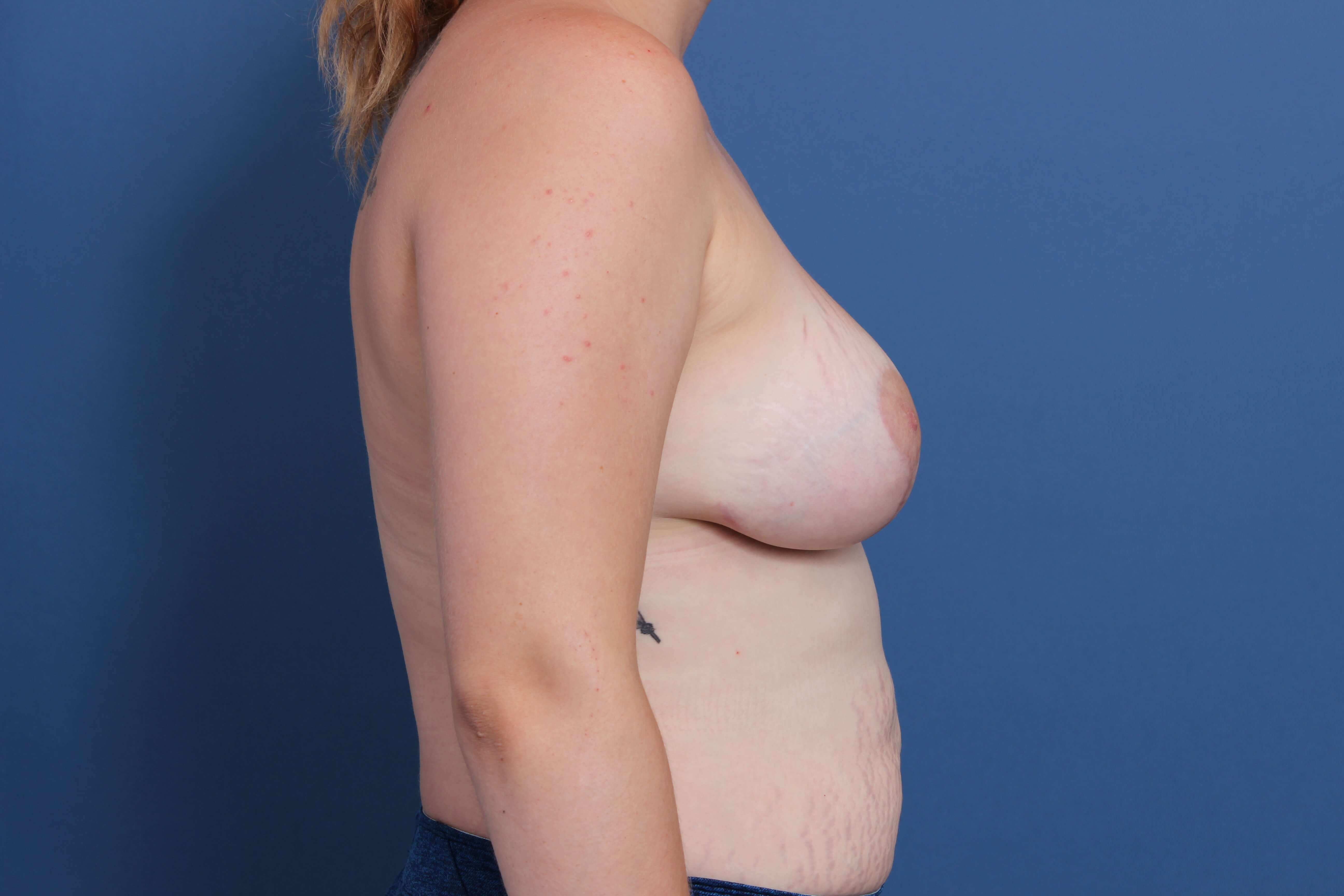 Moderate Plus Profile Implants After