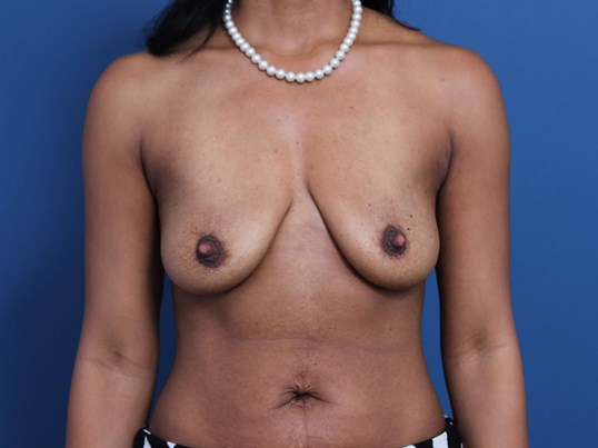 Mastopexy-Aug Orange County Before