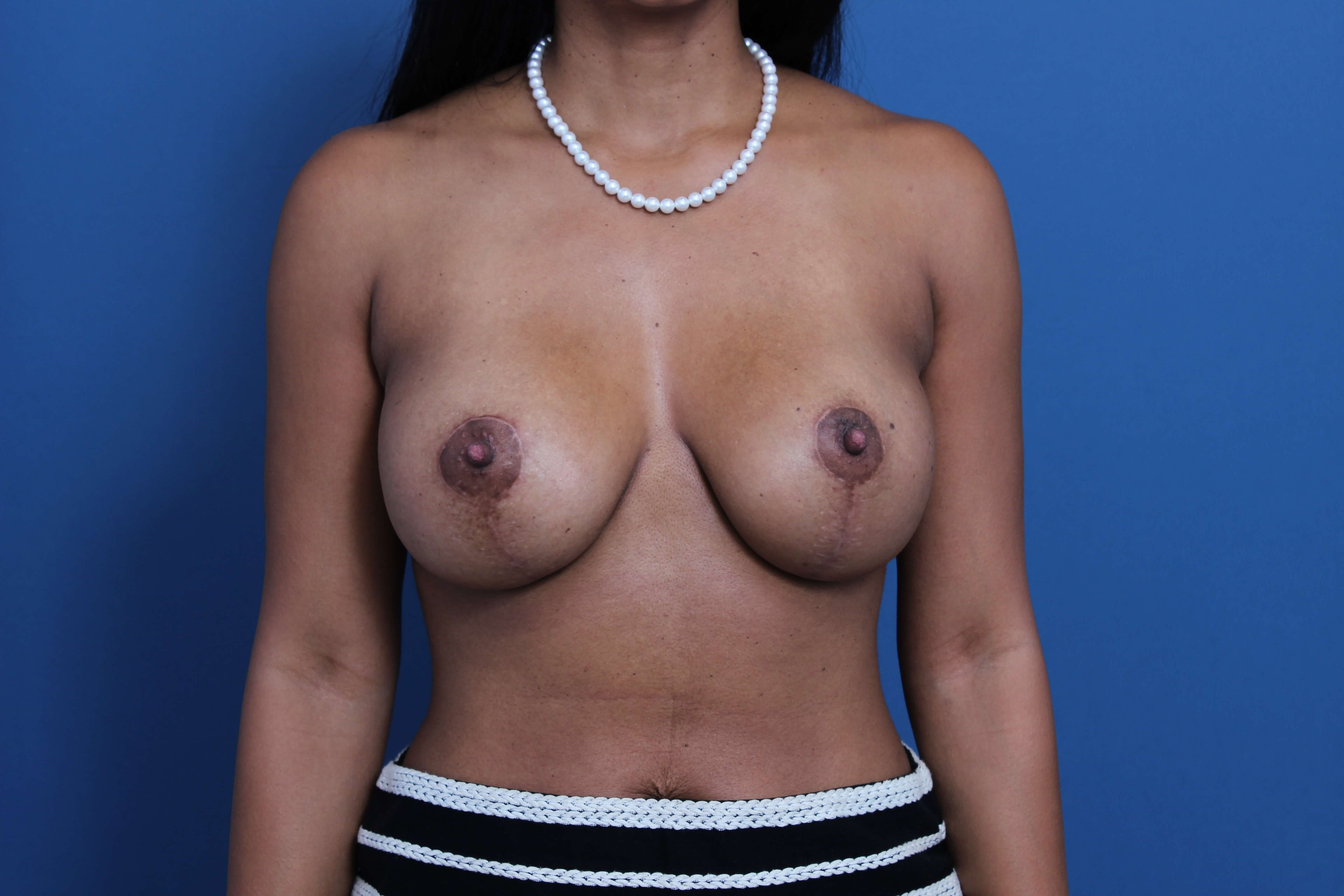 Mastopexy-Aug Orange County After
