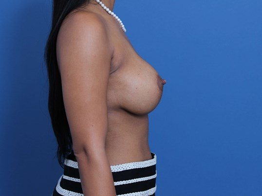 Orange County Breast Implants After